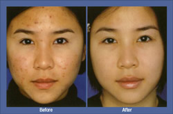 Refractive Surgery Bensalem Pa Cosmetics